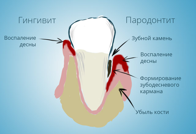 Воспаление и заболевание десен, гингивит и пародонтит