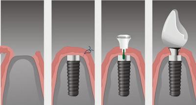 имплантация зубов полтава стоимость