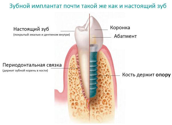 поставить имплант зуба цена полтава