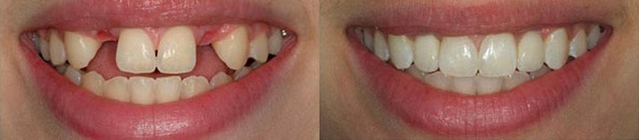 implantaciya-zubov-do-i-posle