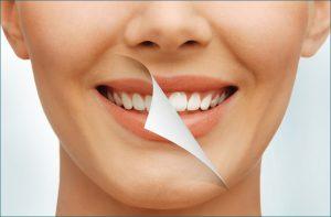 Лазерное отбеливание зубов полтава