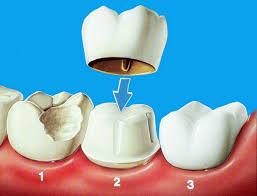 koronka na zub