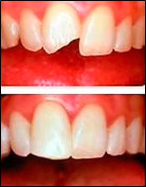 Процент реставрации зубов