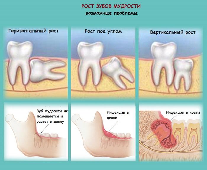 udalenie-zuba-mudrosti-1