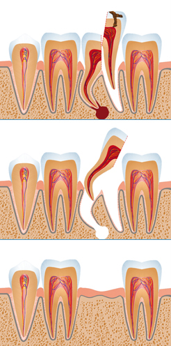 вырвать зуб полтава
