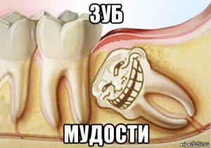 лазерное удаление зуба мудрости