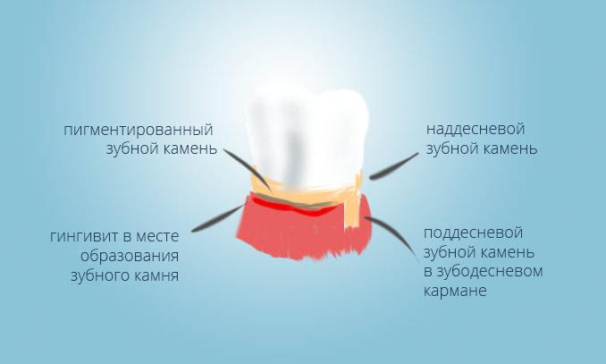 Зубной камень и снятие зубных отложений