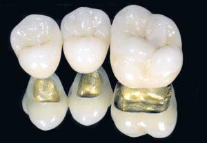 коронка на зуб цена полтава