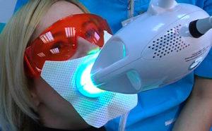 отбеливание зубов полтава