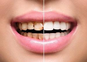 реставрация зубов стоимость