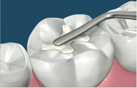 пломба зуба цена полтава