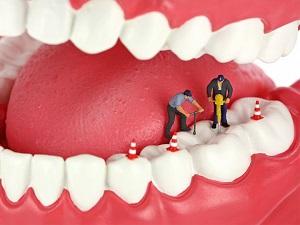реставрация зубов полтава